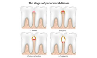 Diagram showing four different stages of gum disease