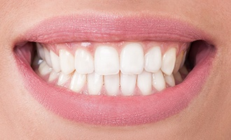 Healthy gums and teeth