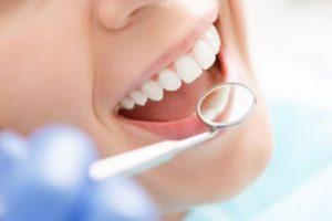 A smiling woman getting a dental exam