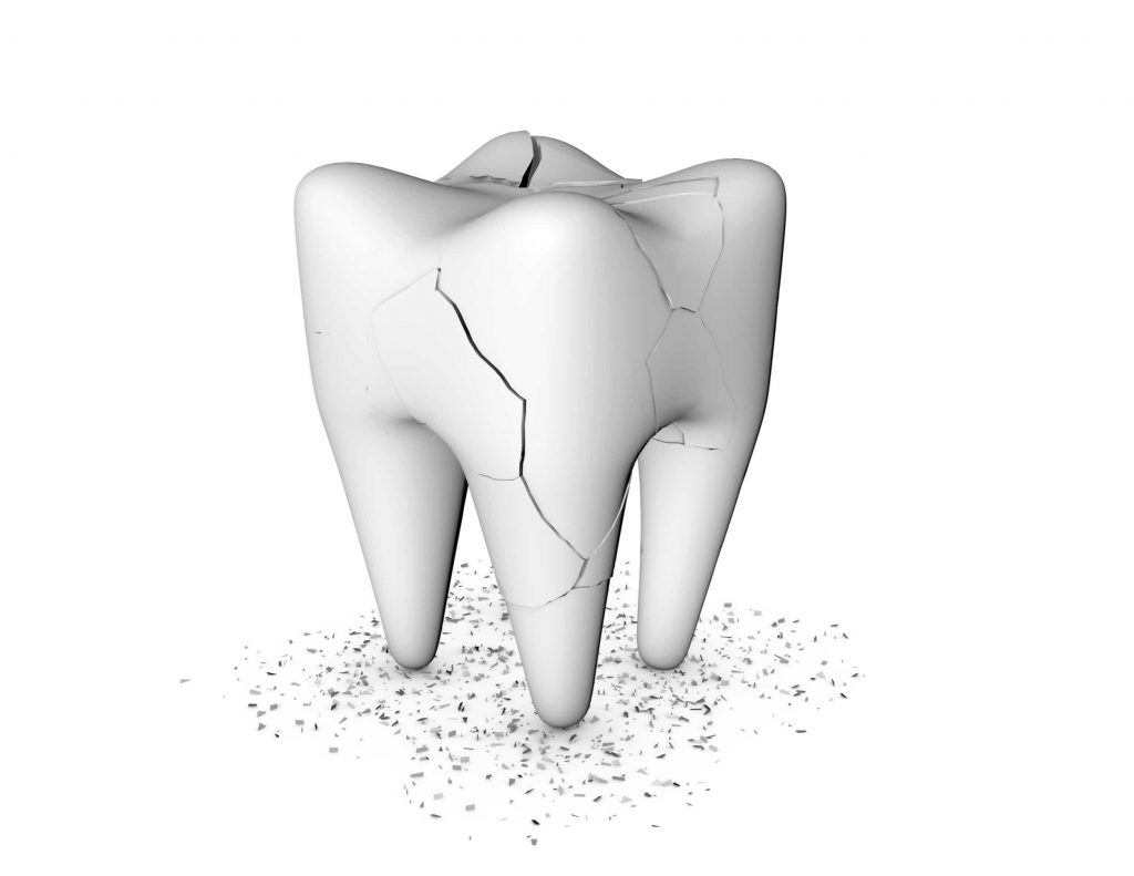 Digital image of a cracked tooth
