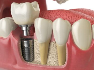 3D image of a single dental implant in lower jawbone