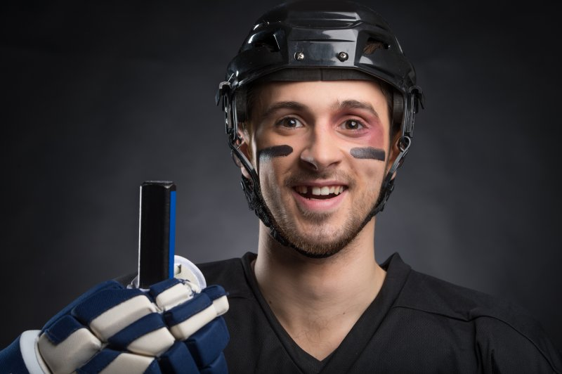 a male hockey player with his mouth open and showing off his knocked-out tooth