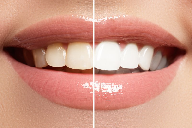 a before and after of a person who recently completed teeth whitening treatment